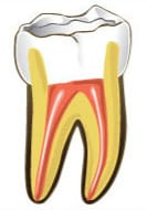 Root Canal - Practice of Family & Cosmetic Dentistry
